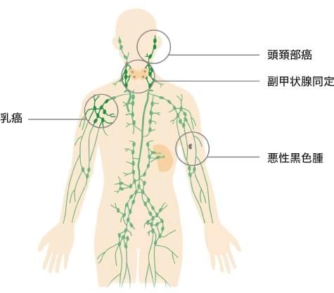 適応症例の図